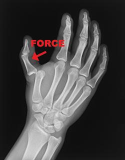 Broken skier's thumb